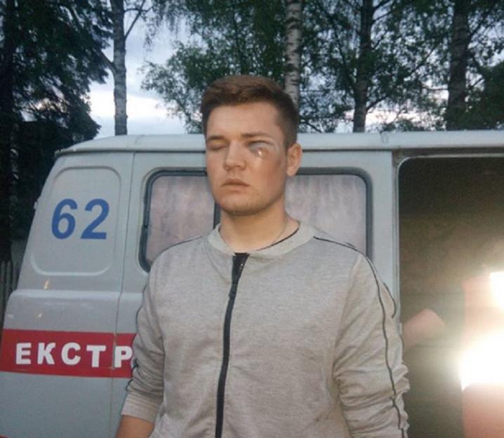 На Путильщині невідомі стріляли зі зброї та побили місцевого хлопця