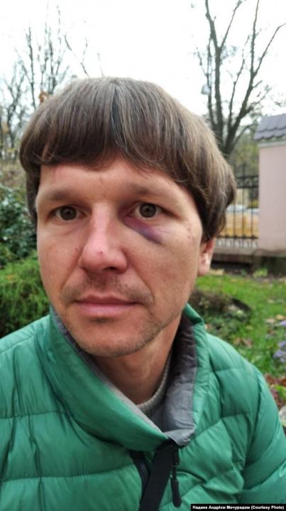 У Львові поліцейський з Чернівців разом з колегами жорстоко побили двох ветеранів АТО