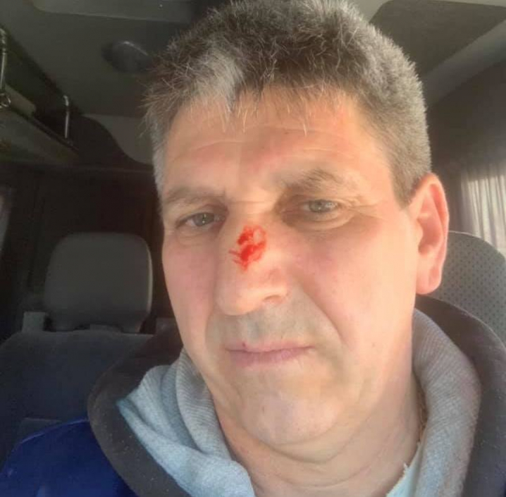 Бійці «Тигру» жорстоко побили директора аеропорту «Чернівці»
